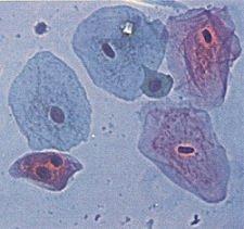 Cell Nucleus | Contexo.Info